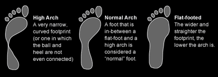 how to tell your foot arch type